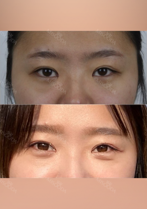 Double eyelids revision : 2 weeks at REN!