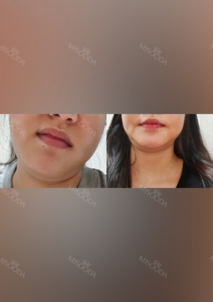 Facial liposuction, Thread Lifting
