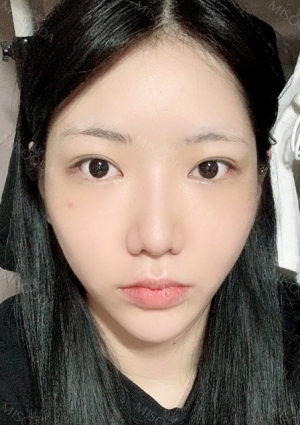 Facial Contour, Double Eyelid Surgery in TS PS!!