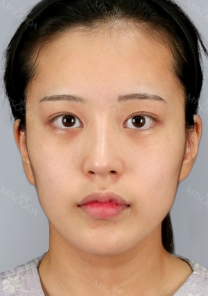 Facial Contour, Chin Reduction, Fat Graft ~!!