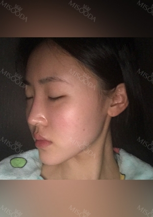 Facial Contour, Chin Reduction, Nose&Eye Surgery After 2 years