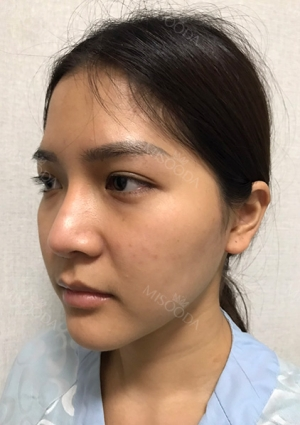 Facial Bone, Nose Surgery, Breast fat graft