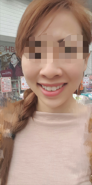 Aesthetic service, filler and toxin experience in Korea
